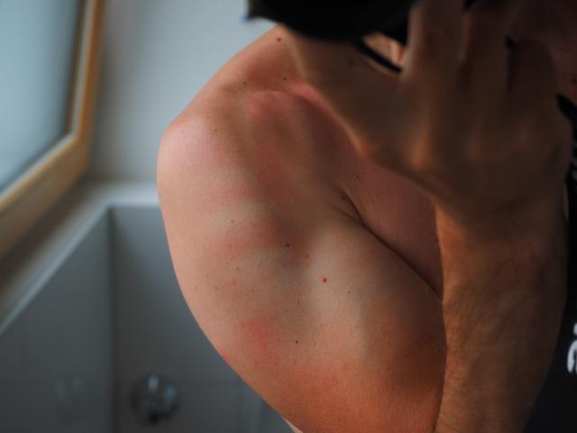 日焼けが痛い時の治し方 即効性の方法で背中などの被害を最小に!